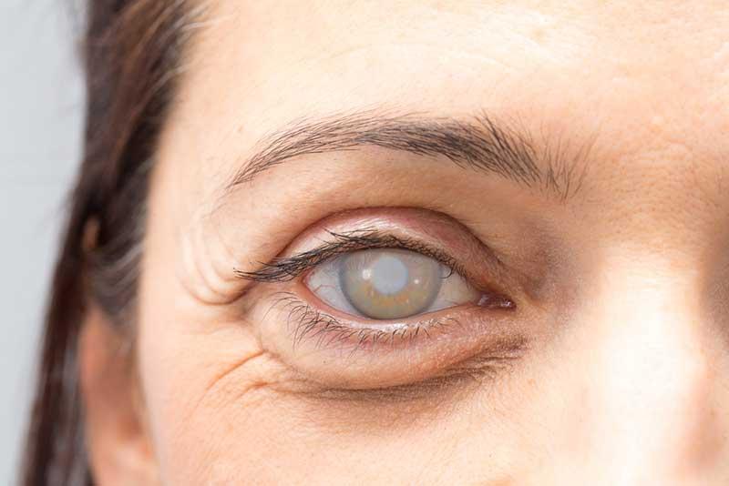 Cataracts  Woodburn, OR